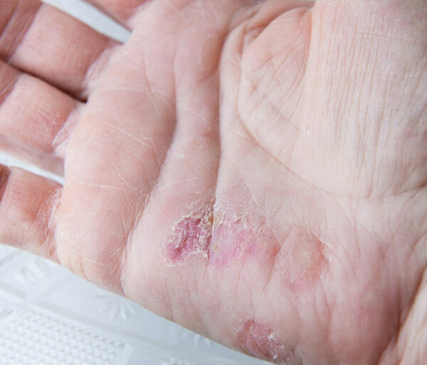 Horizontal  close up image of very dry cracked and peeling skin in the palm of a caucasian woman