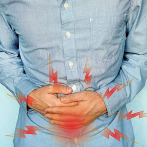 IBD - Ulcerative Colitis Patient Guidelines
