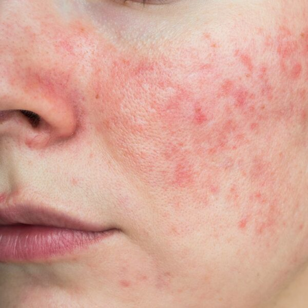A photo of a persons face with rosacea, as evident my red patches of skin.